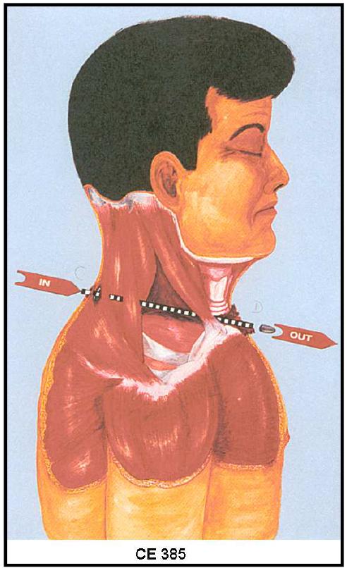 JFK Illustration 3