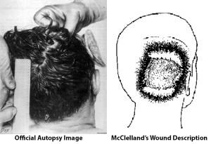 Robert-McCelland-Wound-Description