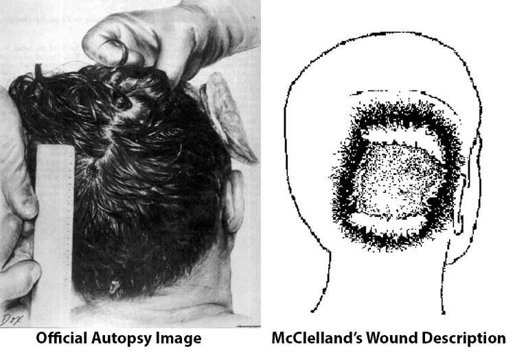 Robert-McCelland-Wound-Description