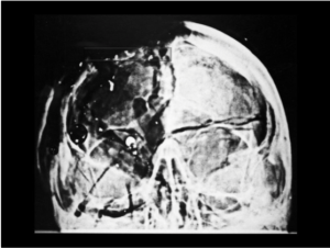 A Review of the JFK Cranial x-Rays and Photographs
